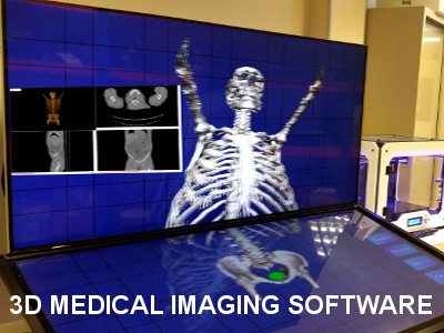 3D Medical Image Processing